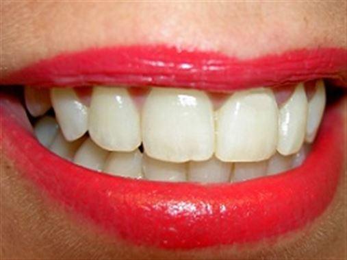 Cientistas britânicos criam substância que pode regenerar dentes e aposentar obturações