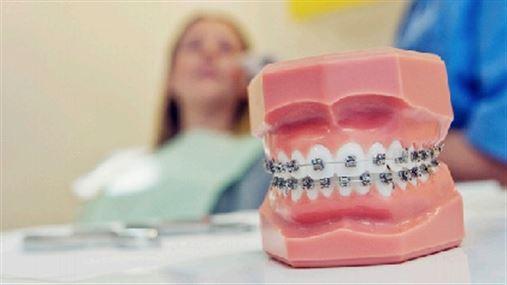 Ortodontia moderna une correção dentária com harmonização facial