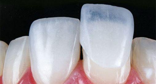 A busca por lentes de contato dental ultrapassa implante de silicone