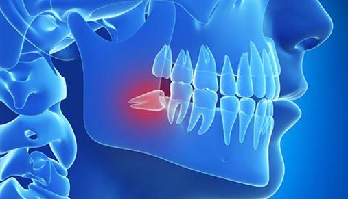 É realmente preciso extrair os dentes do siso?