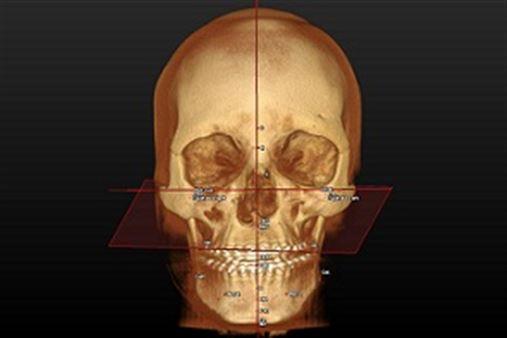 Fusão de imagem 3D do complexo craniomaxilofacial – ferramenta para simulação virtual do tratamento ortodôntico- ortognático