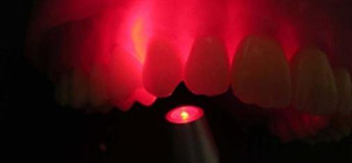 Laser ajuda tratamento dentário em pessoa com Down