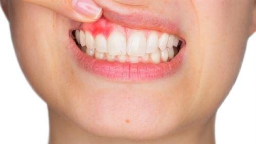 Dieta otimizada para saúde bucal reduz gengivite