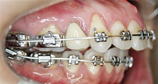 Incisivo inferior permanente – extrair ou desgastar?