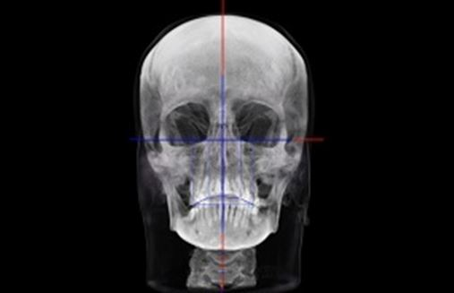 A reabilitação oral multidisciplinar para pacientes adultos edêntulos parciais portadores de má oclusão Trilogia parte 1: a solicitação de tomografias de feixe cônico total do crânio e o uso de softwares tridimensionais de planejamento digital