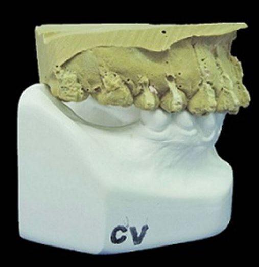 Mecânica com dois arcos para intrusão de molar – relato de caso