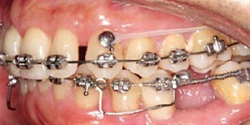 A reabilitação oral multidisciplinar para pacientes adultos edêntulos parciais portadores de má oclusão Trilogia parte 2: qual é o melhor momento do tratamento para a instalação de implantes dentários?