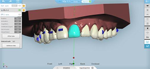 Ortodontia Digital com Alinhadores Ortodônticos – Sistema Cleartek