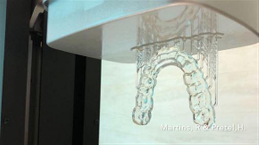 Confecção digitalizada 3D de placas oclusais