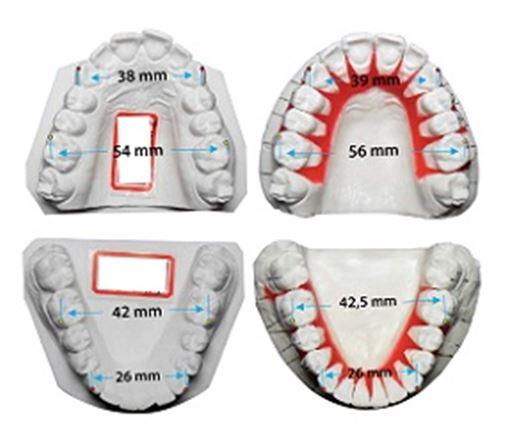 A Ortodontia Lingual e a contribuição efetiva do corredor bucal na estética do sorriso – relato de caso