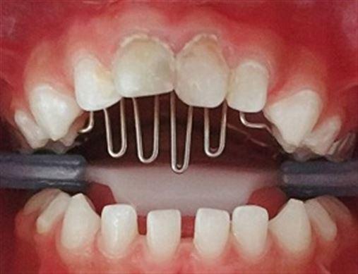 Aparelho ortodôntico fixo com grade palatina para correção da mordida aberta anterior – relato de casos