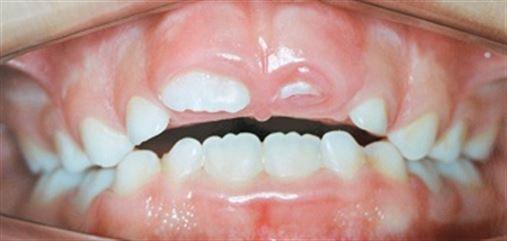 Toxina botulínica no sorriso gengival: recurso terapêutico complementar ao tratamento ortodôntico