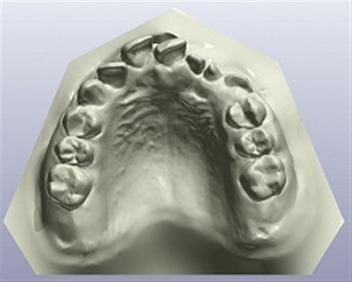 Tratamento em paciente com fissura pré-forame completa: o que o ortodontista precisa saber?