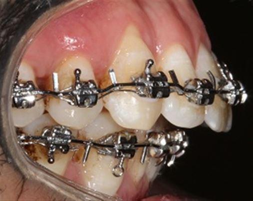 Tratamento orto-cirúrgico de má oclusão de Classe I com retrognatismo mandibular – relato de caso