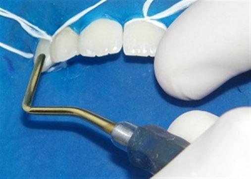 A importância da proporção áurea no tratamento sem extrações dentárias
