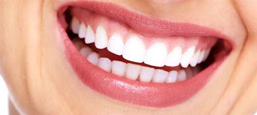 Qual o risco das receitas caseiras para clarear dentes?