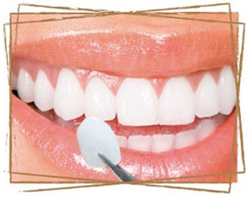 Curso de Imersão: Recuperação da DVO com lentes de contato dental