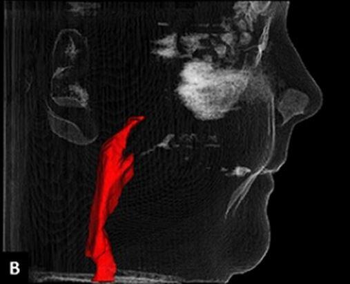 Extrações ortodônticas de pré-molares e seus efeitos nas vias aéreas respiratórias superiores – revisão da literatura