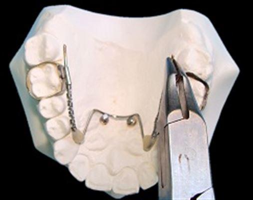 Distalizador PC – distalização de molares superiores em indivíduos Classe II dentária: uma nova versão