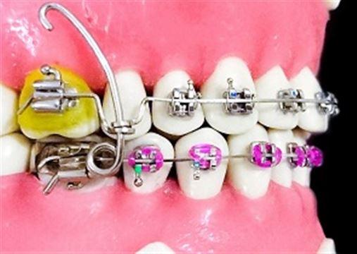 O aparelho utilitário – descrição de um novo dispositivo para reposicionamento mandibular