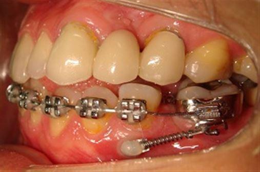 Mesialização de molares com ancoragem em mini-implantes e braço de força