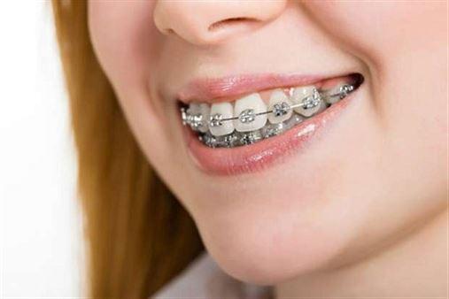 Aparelho ortodôntico pode deixar os dentes moles?