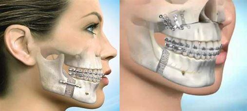 Quase 10 milhões de brasileiros precisam de cirurgia nos maxilares