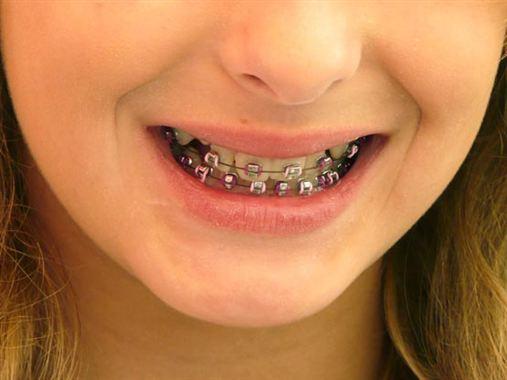 Criança que usa aparelho perde menos dentes na vida adulta