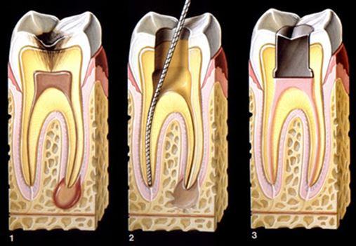 Canal mal tratado pode levar à cirurgia endodôntica