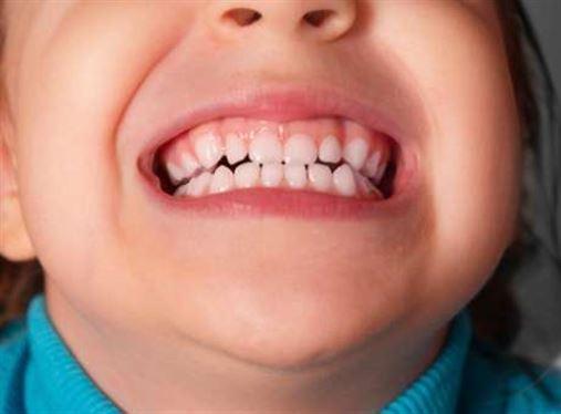 Dentes pequenos demais ou grandes demais, saiba como tratar