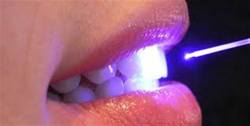Terapia com luz laser trata periodontite agressiva