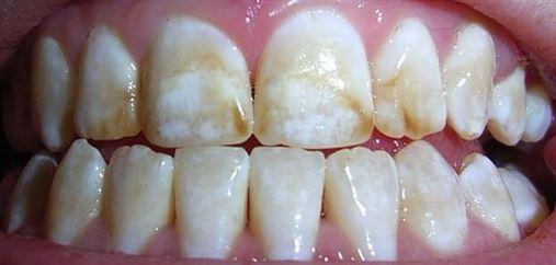 Fluorose dentária – o que é como prevenir