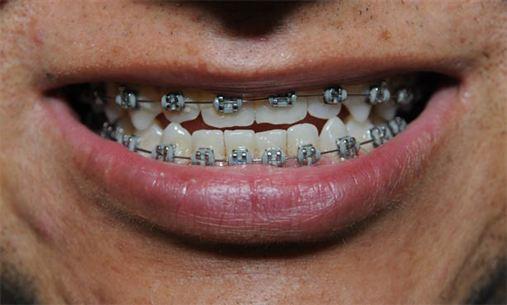 Cresce o número de adultos em busca do alinhamento perfeito dos dentes