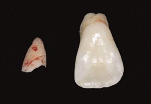 Trauma dentário como fator de inversão na erupção dentária e dilaceração radicular – relato de caso