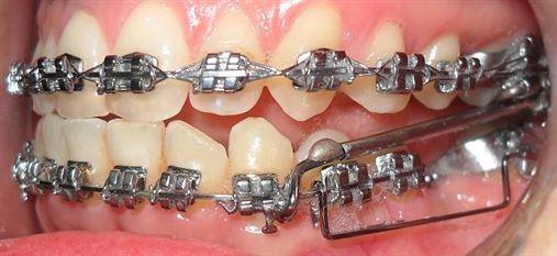 Tratamento da má oclusão Classe II, 2º divisão, com desvio de linha média com aparelho de protrusão mandibular unilateral