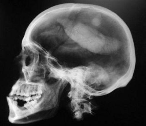 Radiografia panorâmica facial pode revelar calcificação na base do crânio