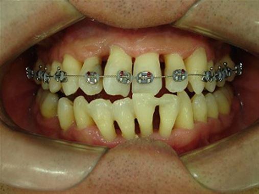 Ortodontia x periodontia em paciente adulto – relato de caso