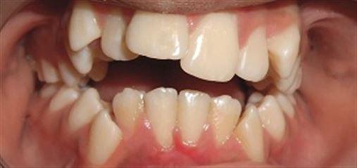 Tratamento da atresia dos maxilares e mordida aberta anterior por hábito de sucção atípica – relato de caso