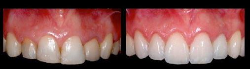 CFO autoriza a divulgação de autorretratos (selfie) e de imagens relativas ao diagnóstico e ao resultado final de tratamentos odontológicos