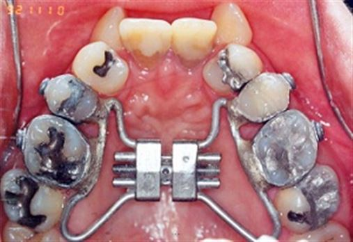 Rehabilitation treatment associating maxillary atresia and missing superior incisors – clinical case study report