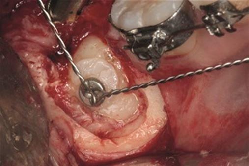 Tracionamento ortodôntico de terceiro molar após enucleação de ameloblastoma – relato de caso