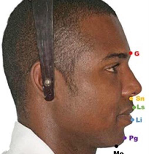 Influência do posicionamento sagital da mandíbula na atratividade facial e no tratamento ortodôntico-cirúrgico