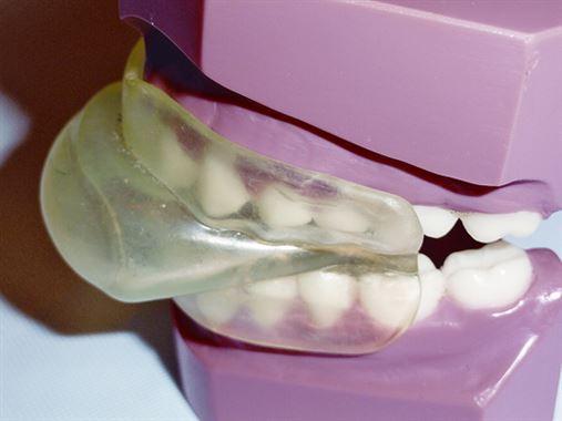 Tratamento do ronco primário – Quando e como usar aparelhos retentores de língua