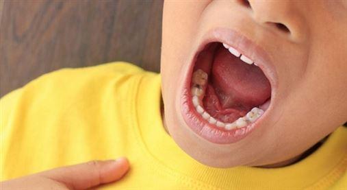 Período de amamentação pode impactar em cáries