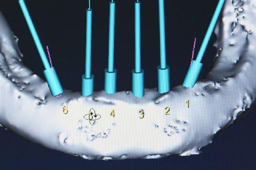 Novas tecnologias no setor de implantodontia