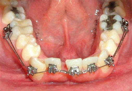 Ortodontia minimalista no tratamento das más ….