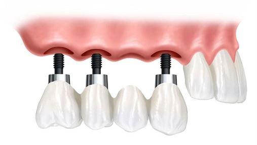 Planejamento individualizado para próteses e implantes dentários é destaque na IDS 2015