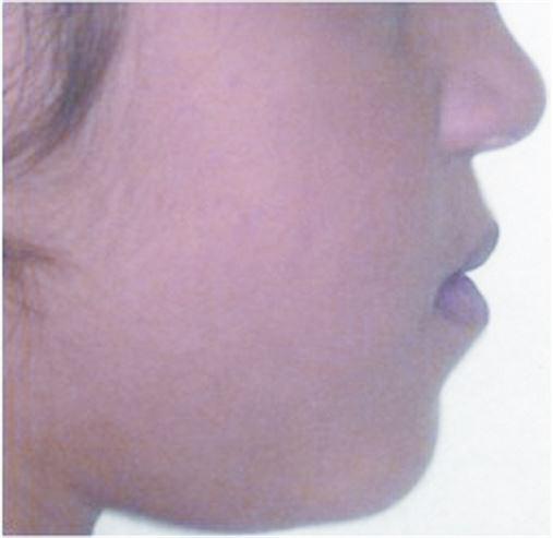 Avaliação do perfil tegumentar do terço inferior da face em leucodermas brasileiros portadores de padrão I