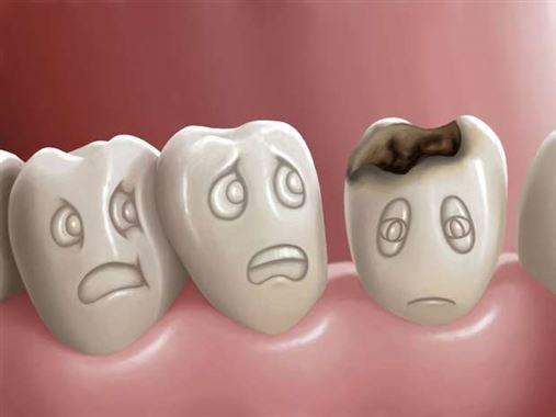 Um terço da população mundial sofre com problemas dentários