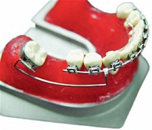 Biomecânica ortodôntica no tratamento reabilitador bucal
